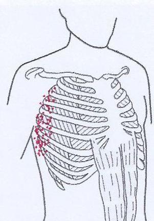 In seite stechen rechts der Rechtsseitige Bauchschmerzen: