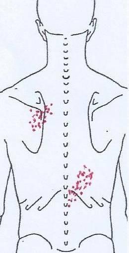 Achsel schmerzen unter Knoten unter