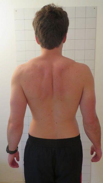 Schulterschmerzen hinten durch Verspannungen