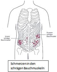 Wie den Bauch mit Hilfe der Klistiere zu entfernen