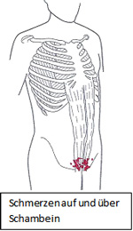 Beim mann schmerzen schambein Schambeinbruch: Ursachen,