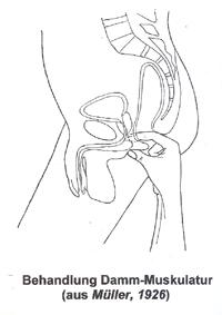 chronische prostatitis
