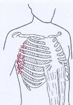 Brustschmerzen rechts - Das sind die Ursachen!