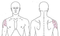 Schmerzen beim Arm heben – Ursachen, Symptome und Behandlung