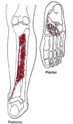 Tibialis-posterior-Muskel